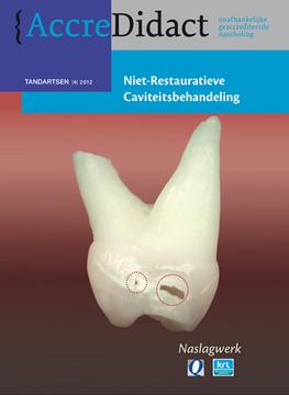 Niet-restauratieve caviteitsbehandeling (NRC)