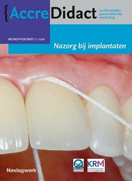 Nazorg bij implantaten