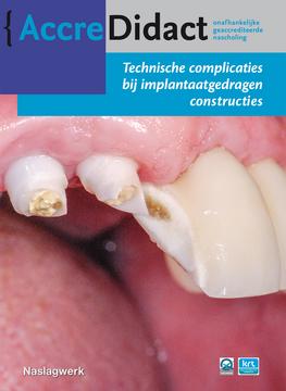 Technische complicaties bij implantaatgedragen constructies