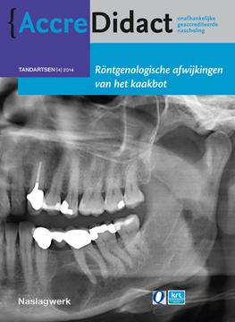 Röntgenologische afwijkingen van het kaakbot