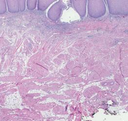Dermatomycosen