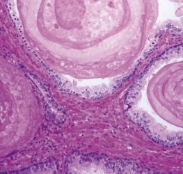 Urologie man