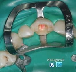 Restaureren na endodontische behandeling 1