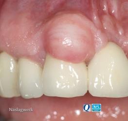 Aandoeningen van het mondslijmvlies 1
