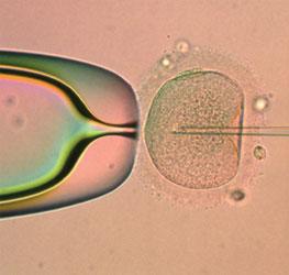 Subfertiliteit