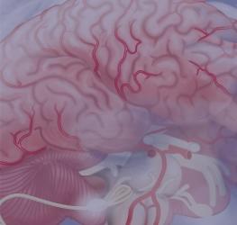 Cerebrovasculaire aandoeningen