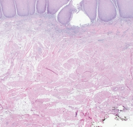 Dermatomycosen - therapie en preventie