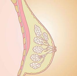 Mammacarcinoom -  aspecten voor de huisarts