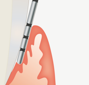 Parodontologie voor de preventieassistent