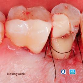 Chirurgische kroonverlenging