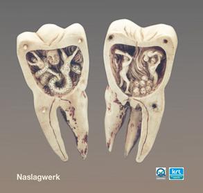 Kiespijn, dentogeen of niet-dentogeen?