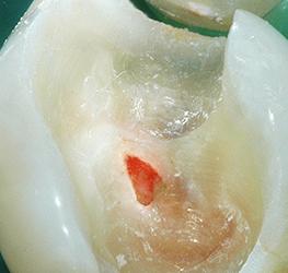 Vitaal houden van de pulpa - Indicatie en klinische uitvoering
